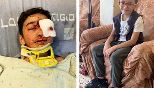 BACBI : le petit Malek Issa, 9 ans, qui rentrait de l'école, à Jérusalem-Est occupée, a sans raison aucune été abattu d'une balle en plein visage par un policier israélien