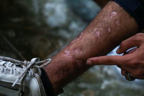 Ahmad al-Masry avait été touché à la jambe droite par un sniper israélien lors des protestations de 2018. (Photo : Mohammed Al-Hajjar / The Electronic Intifada)